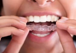 A person inserting an Invisalign aligner