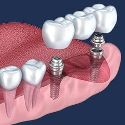 dental implant supported fixed bridge