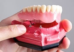 Model of implant denture